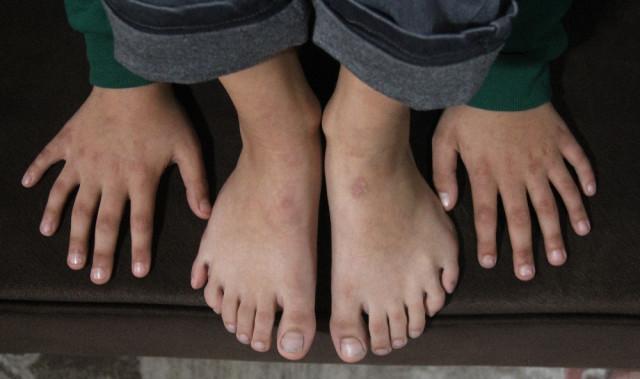 Yazı Yazmak ve Ayakkabı Giymek Onun İçin Çile